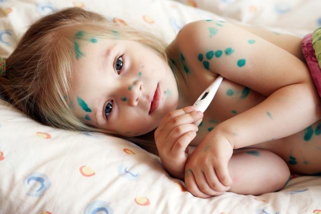 Особенности ветрянки у детей, правильное лечение заболевания