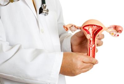 Миома матки - причины, симптомы, диагностика и лечение миомы матки