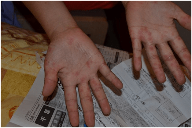 Прыщи на руках: причины появления и советы по избавлению