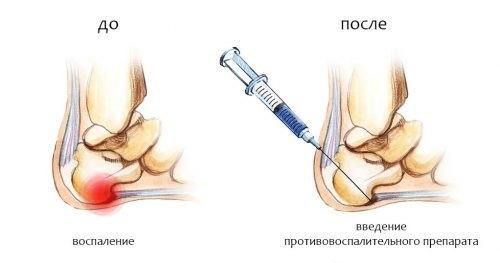 Пяточная шпора: симптомы, лечение, лекарства