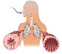 Бронхиальная астма: симптомы и лечение