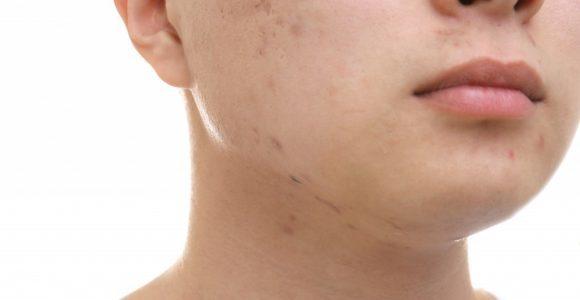 Как Доксициклин от прыщей помогает решить кожные проблемы