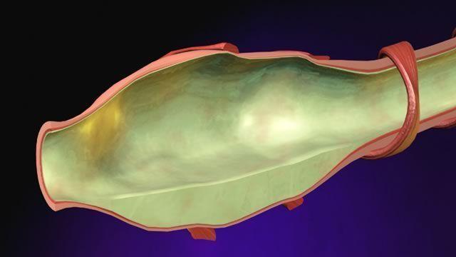 Почему при кашле образуется желтая мокрота и как с ней бороться
